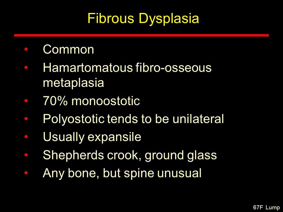 Fibrous Dysplasia Common Hamartomatous fibro-osseous metaplasia 70% monoostotic Polyostotic tends to be unilateral Usually expansile Shepherds crook, ground glass Any bone, but spine unusual 67F Lump