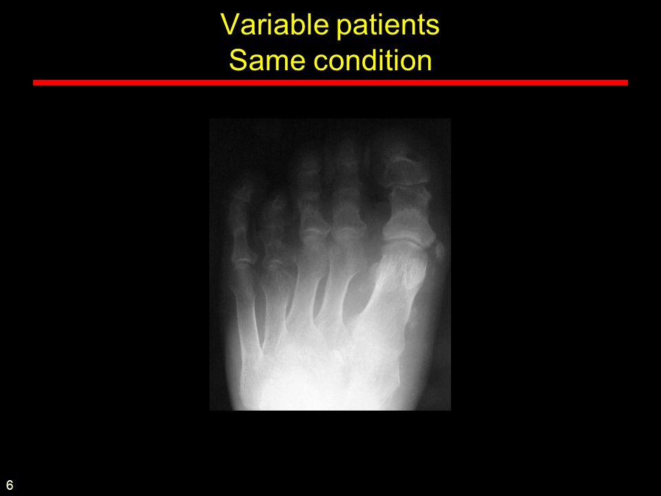 Variable patients Same condition 6