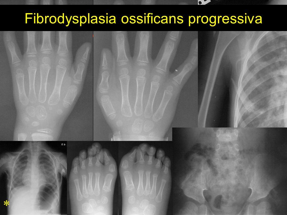 * Fibrodysplasia ossificans progressiva