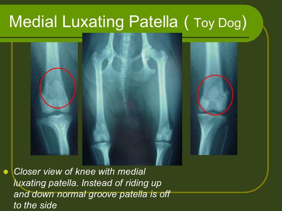 Medial Luxating Patella ( Toy Dog ) Closer view of knee with medial luxating patella. Instead of riding up and down normal groove patella is off to th