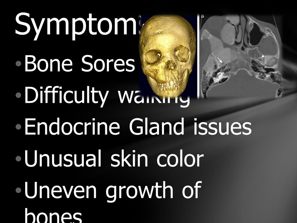Bone Sores Difficulty walking Endocrine Gland issues Unusual skin color Uneven growth of bones Symptoms