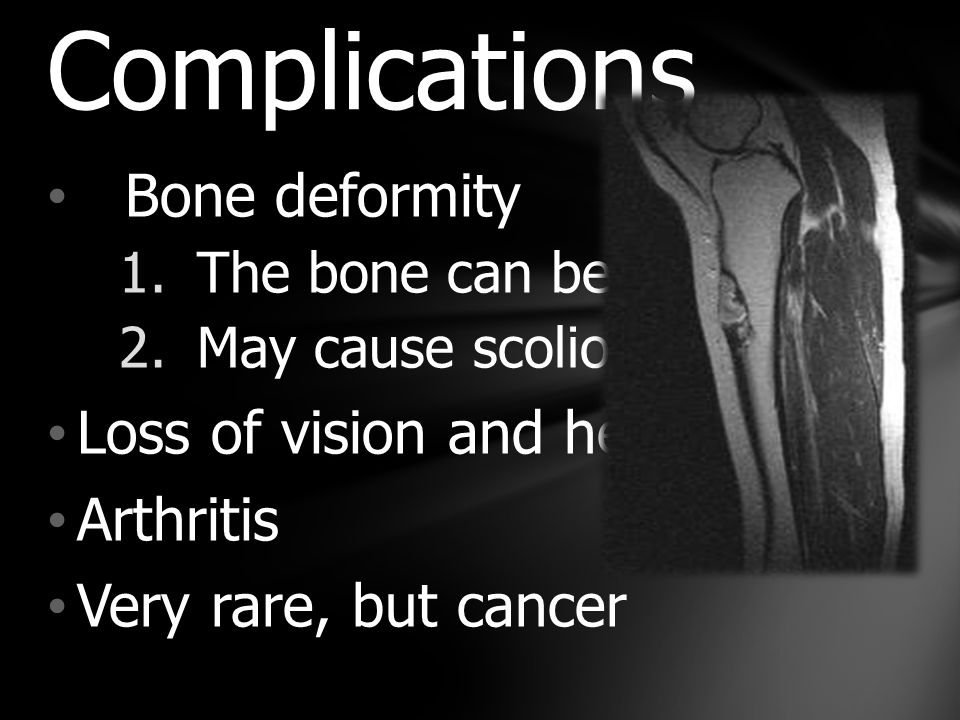 Bone deformity 1.The bone can bend 2.May cause scoliosis Loss of vision and hearing Arthritis Very rare, but cancer Complications