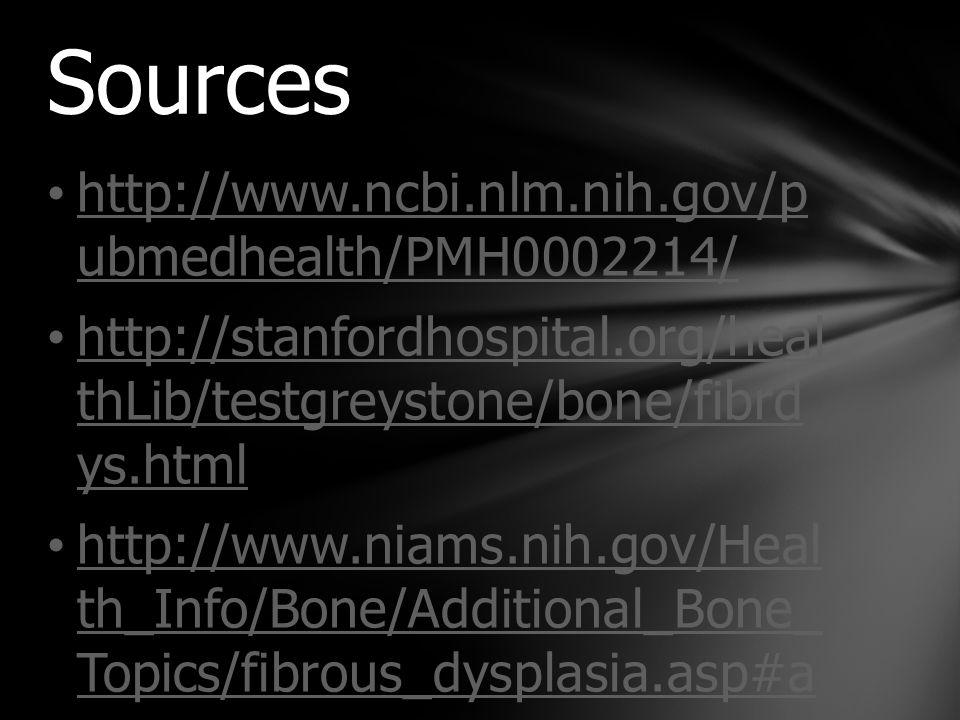 http://www.ncbi.nlm.nih.gov/p ubmedhealth/PMH0002214/http://www.ncbi.nlm.nih.gov/p ubmedhealth/PMH0002214/ http://stanfordhospital.org/heal thLib/testgreystone/bone/fibrd ys.htmlhttp://stanfordhospital.org/heal thLib/testgreystone/bone/fibrd ys.html http://www.niams.nih.gov/Heal th_Info/Bone/Additional_Bone_ Topics/fibrous_dysplasia.asp#ahttp://www.niams.nih.gov/Heal th_Info/Bone/Additional_Bone_ Topics/fibrous_dysplasia.asp#a Sources