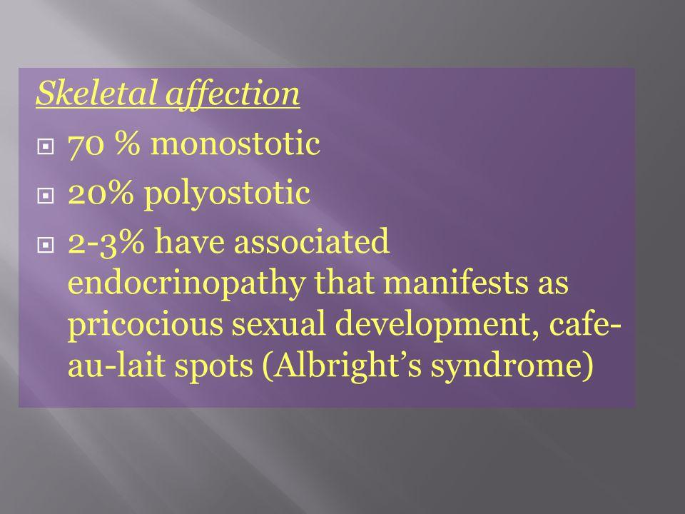 Skeletal affection  70 % monostotic  20% polyostotic  2-3% have associated endocrinopathy that manifests as pricocious sexual development, cafe- au-lait spots (Albright's syndrome)
