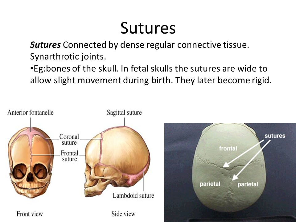 Sutures Sutures Connected by dense regular connective tissue.