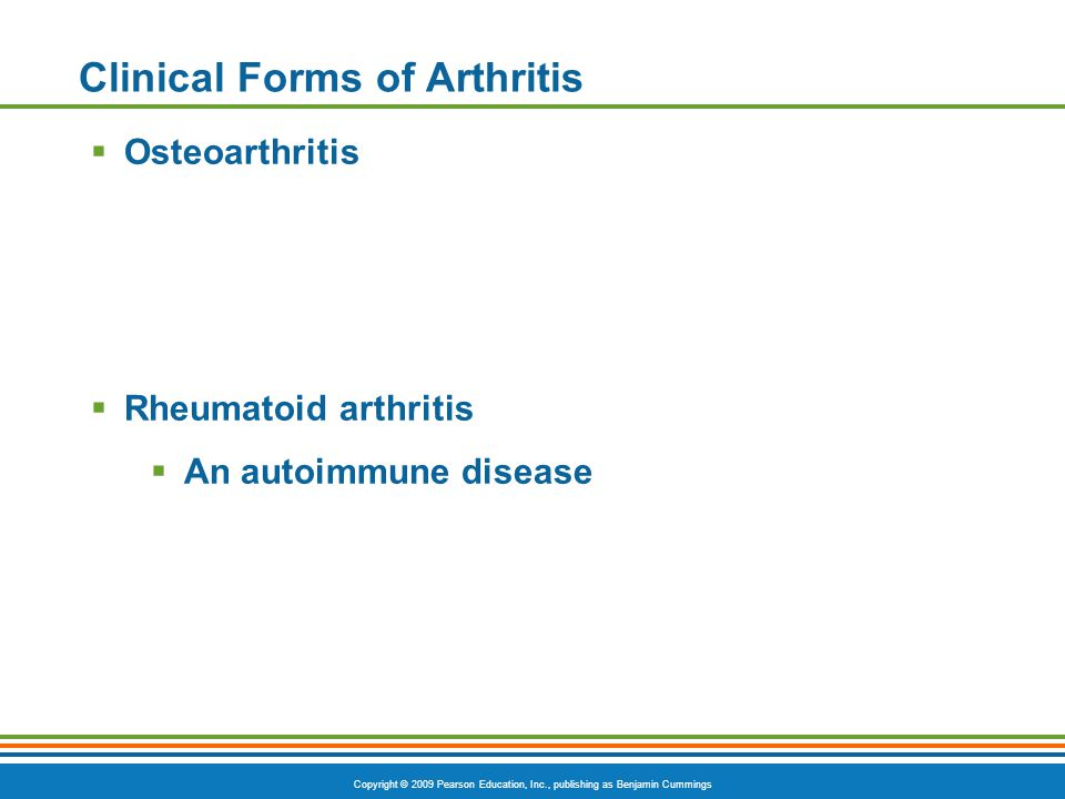 Copyright © 2009 Pearson Education, Inc., publishing as Benjamin Cummings Clinical Forms of Arthritis  Osteoarthritis  Rheumatoid arthritis  An autoimmune disease