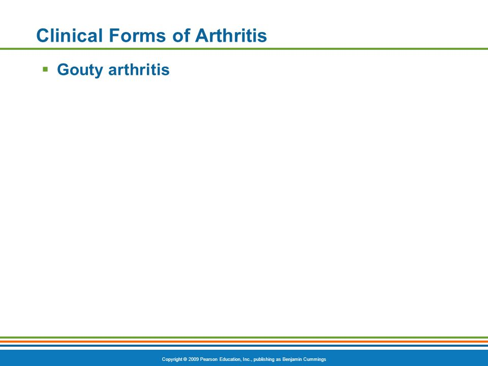 Copyright © 2009 Pearson Education, Inc., publishing as Benjamin Cummings Clinical Forms of Arthritis  Gouty arthritis