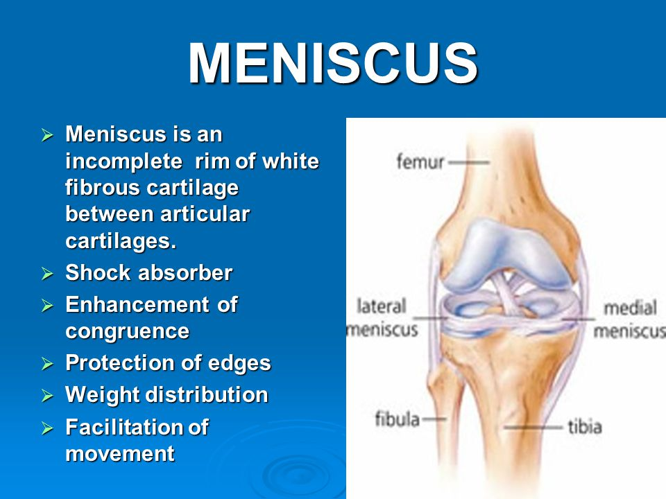 MENISCUS  Meniscus is an incomplete rim of white fibrous cartilage between articular cartilages.