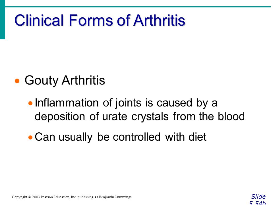 Clinical Forms of Arthritis Slide 5.54b Copyright © 2003 Pearson Education, Inc.