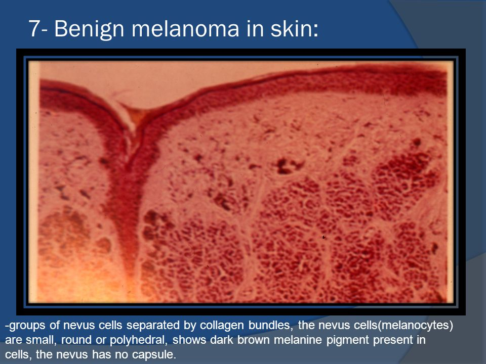 7- Benign melanoma in skin: -groups of nevus cells separated by collagen bundles, the nevus cells(melanocytes) are small, round or polyhedral, shows dark brown melanine pigment present in cells, the nevus has no capsule.