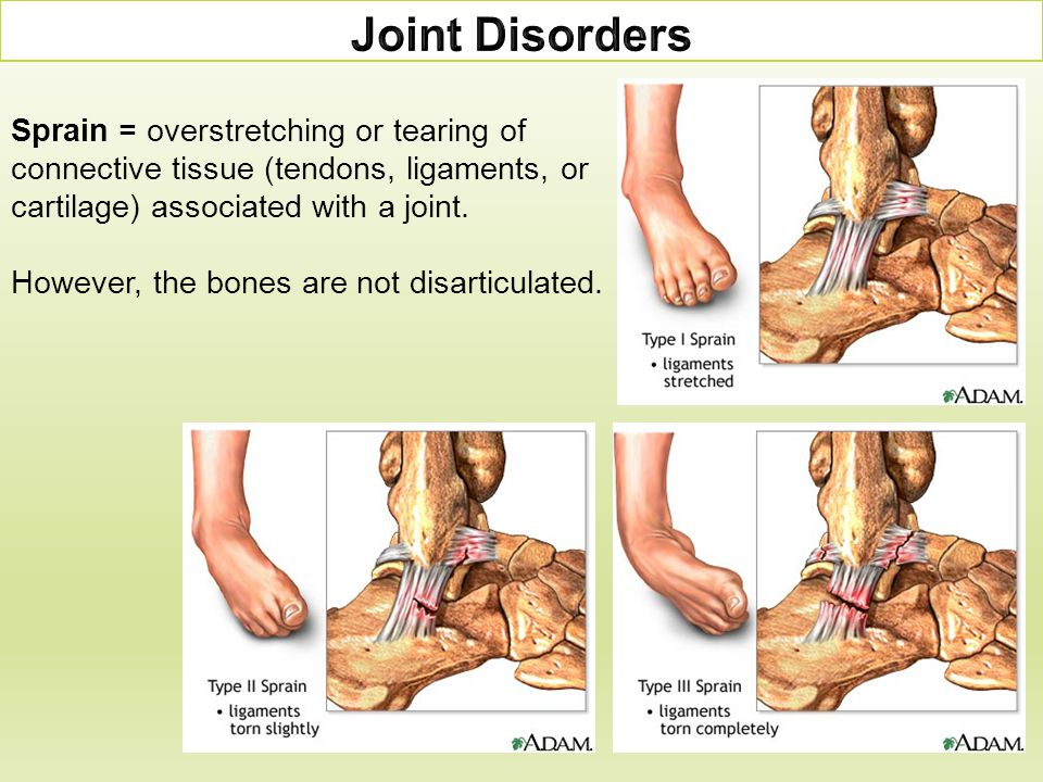Sprain = overstretching or tearing of connective tissue (tendons, ligaments, or cartilage) associated with a joint. However, the bones are not disarti