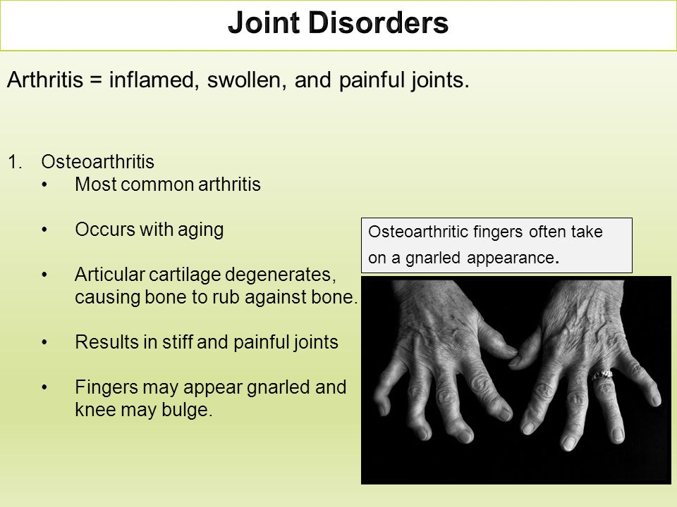 Arthritis = inflamed, swollen, and painful joints. 1.Osteoarthritis Most common arthritis Occurs with aging Articular cartilage degenerates, causing b