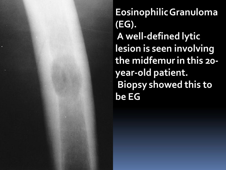 Eosinophilic Granuloma (EG). A well-defined lytic lesion is seen involving the midfemur in this 20- year-old patient. Biopsy showed this to be EG