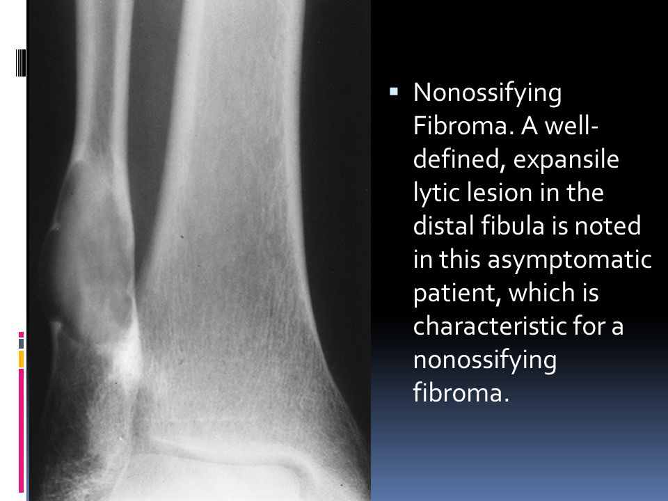  Nonossifying Fibroma. A well- defined, expansile lytic lesion in the distal fibula is noted in this asymptomatic patient, which is characteristic fo