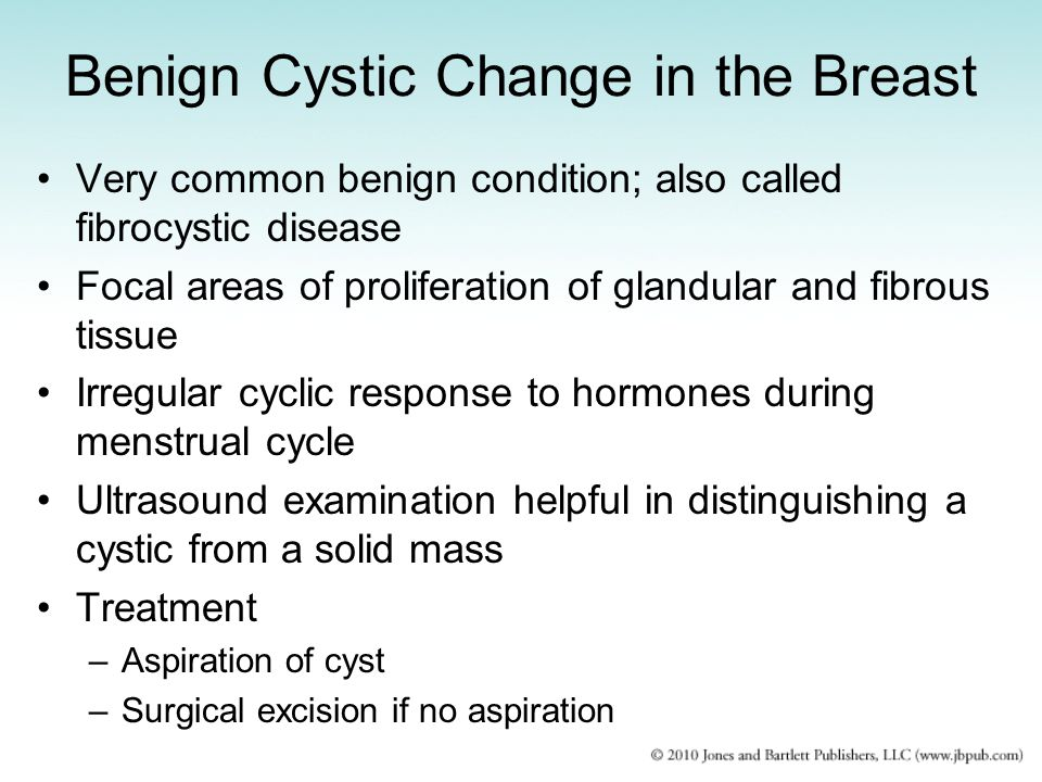 Benign Cystic Change in the Breast Very common benign condition; also called fibrocystic disease Focal areas of proliferation of glandular and fibrous