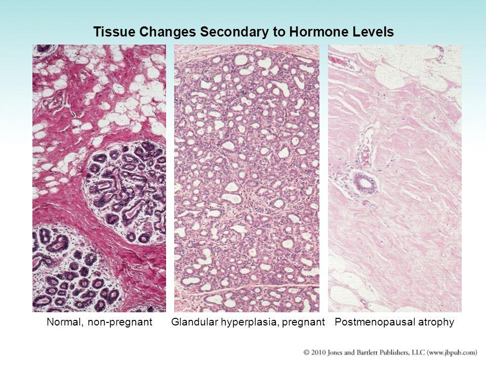 Normal, non-pregnantGlandular hyperplasia, pregnantPostmenopausal atrophy Tissue Changes Secondary to Hormone Levels