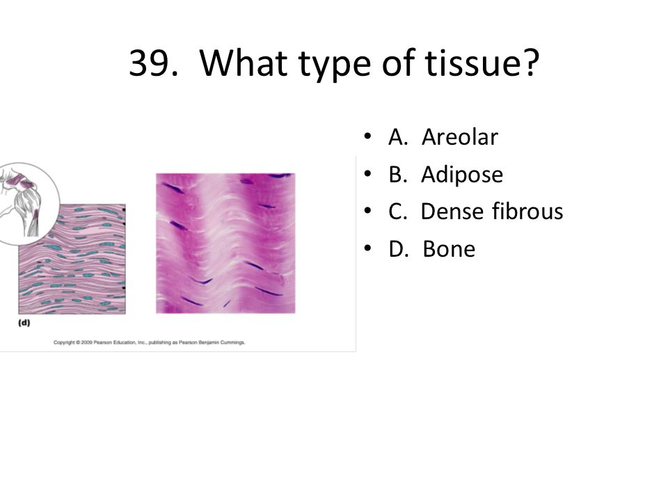 39. What type of tissue A. Areolar B. Adipose C. Dense fibrous D. Bone