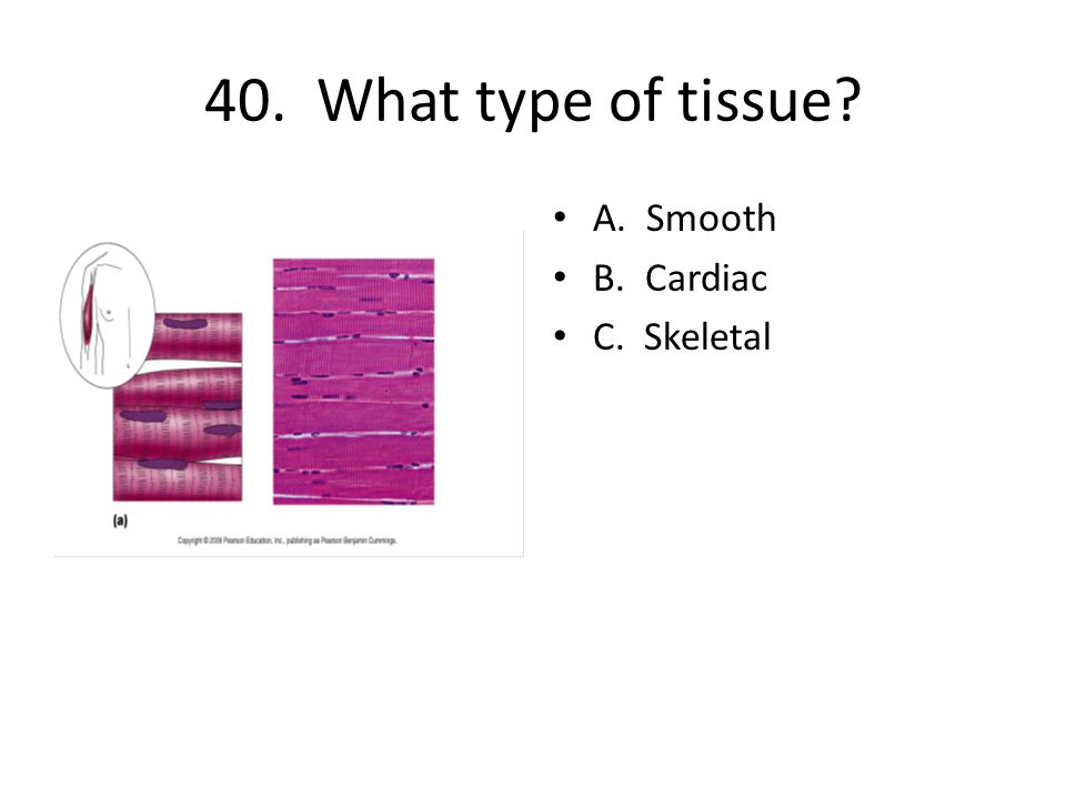 40. What type of tissue A. Smooth B. Cardiac C. Skeletal