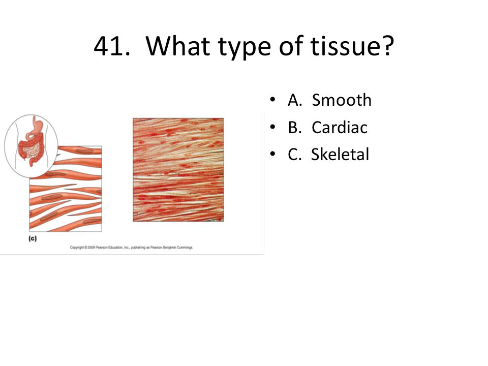 41. What type of tissue? A. Smooth B. Cardiac C. Skeletal
