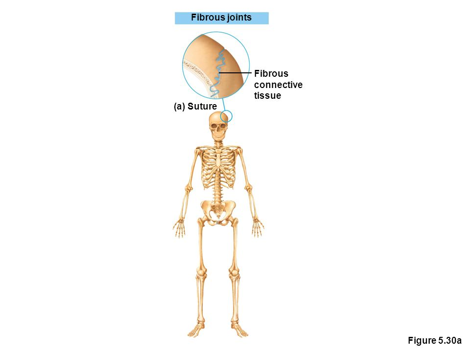 Figure 5.30a Fibrous joints Fibrous connective tissue (a) Suture