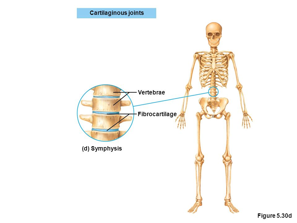 Figure 5.30d Cartilaginous joints Vertebrae Fibrocartilage (d) Symphysis