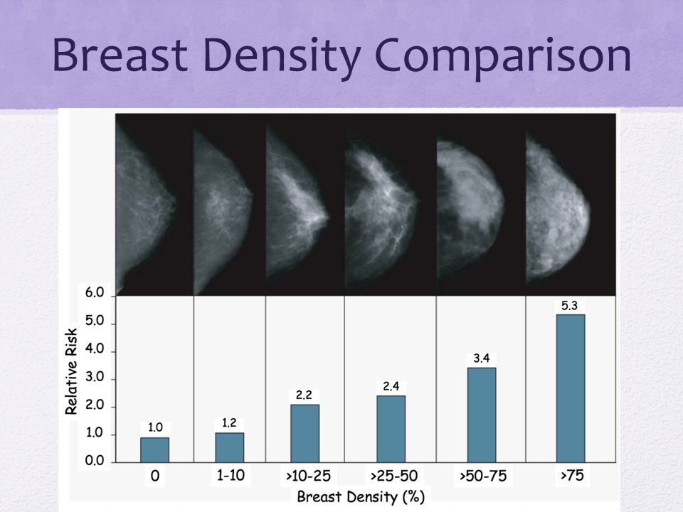 Age and Breast Density ¾ of women in their 30's have increased breast density ¼ of women in their 70's have increased breast density Mammographic breast density can diminish over time Women whose breast density does not diminish over time are more likely to be diagnosed with breast cancer Int J Cancer.