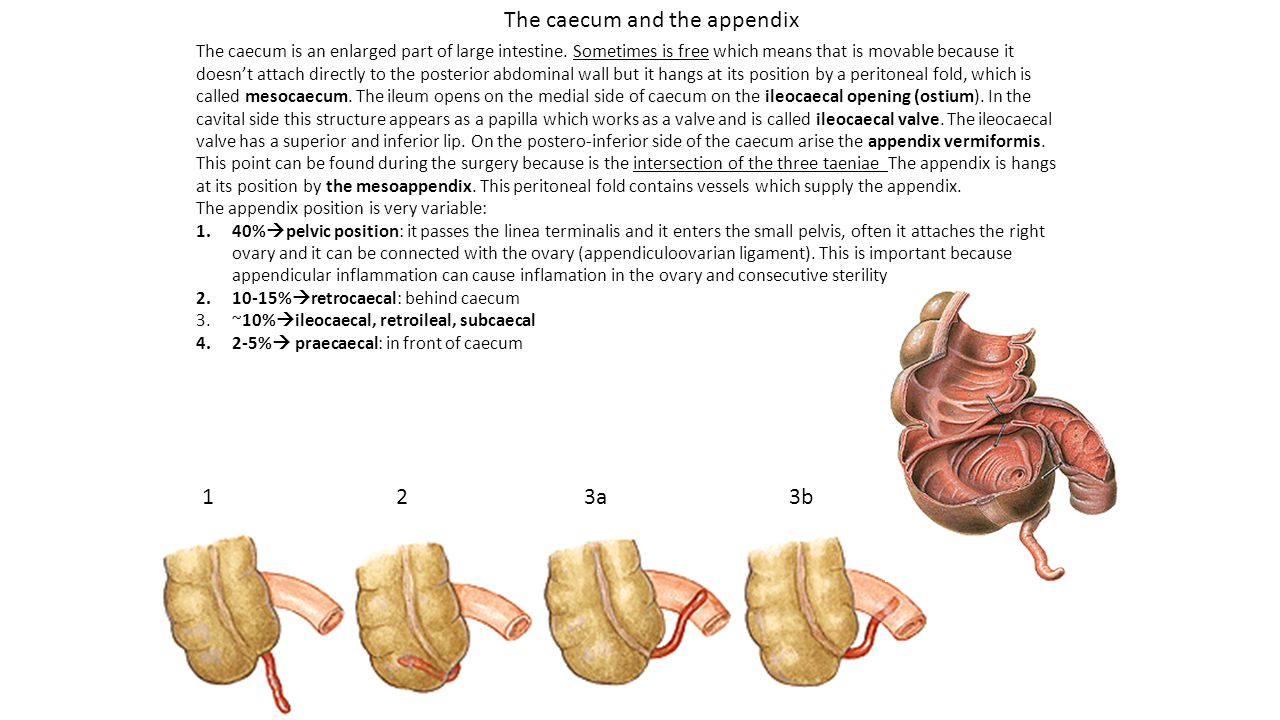 The caecum is an enlarged part of large intestine. Sometimes is free which means that is movable because it doesn't attach directly to the posterior a