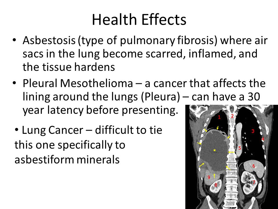 Health Effects Asbestosis (type of pulmonary fibrosis) where air sacs in the lung become scarred, inflamed, and the tissue hardens Pleural Mesothelioma – a cancer that affects the lining around the lungs (Pleura) – can have a 30 year latency before presenting.