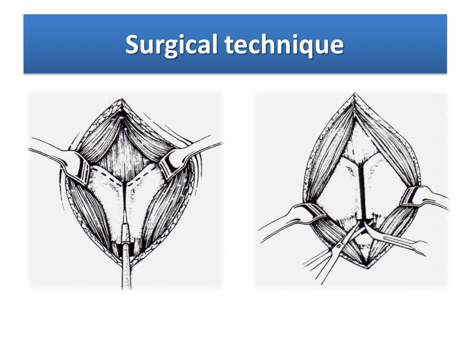Surgical technique