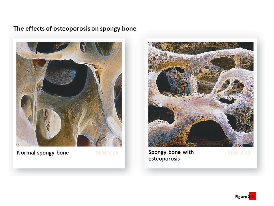 Figure 8.5 5 The effects of osteoporosis on spongy bone Normal spongy bone SEM x 25SEM x 21 Spongy bone with osteoporosis