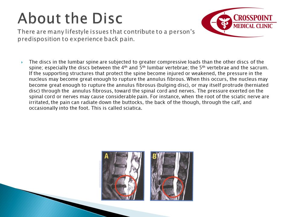 The discs in the lumbar spine are subjected to greater compressive loads than the other discs of the spine; especially the discs between the 4 th an