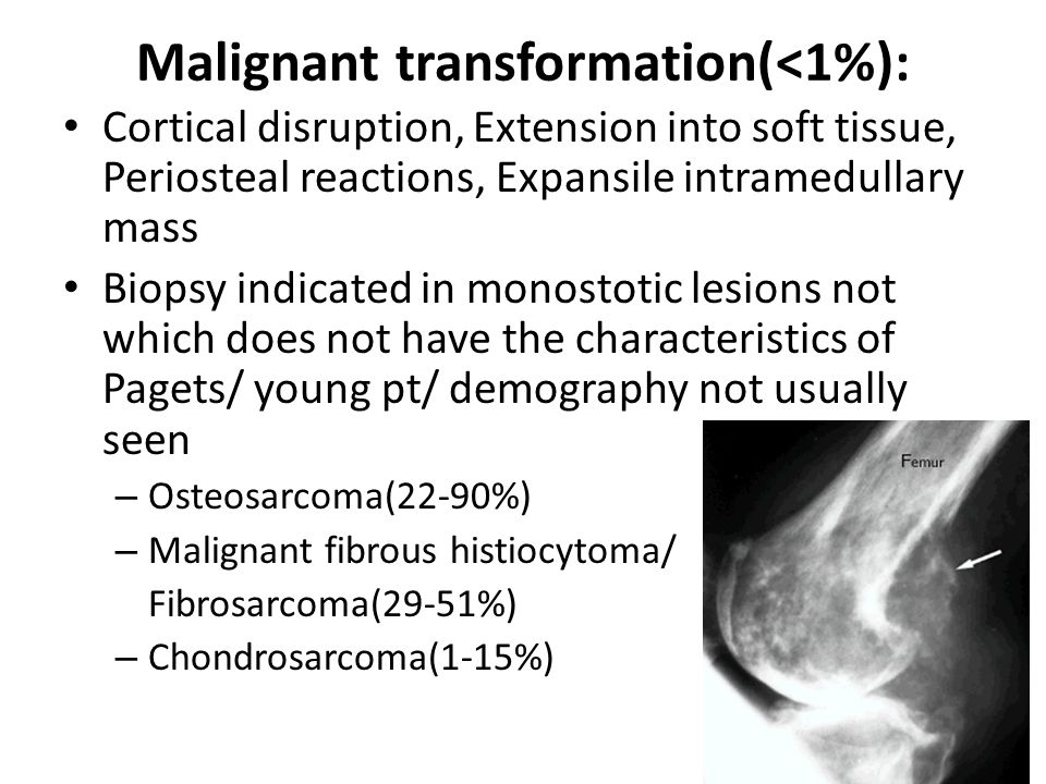 Malignant transformation(<1%): Cortical disruption, Extension into soft tissue, Periosteal reactions, Expansile intramedullary mass Biopsy indicated i
