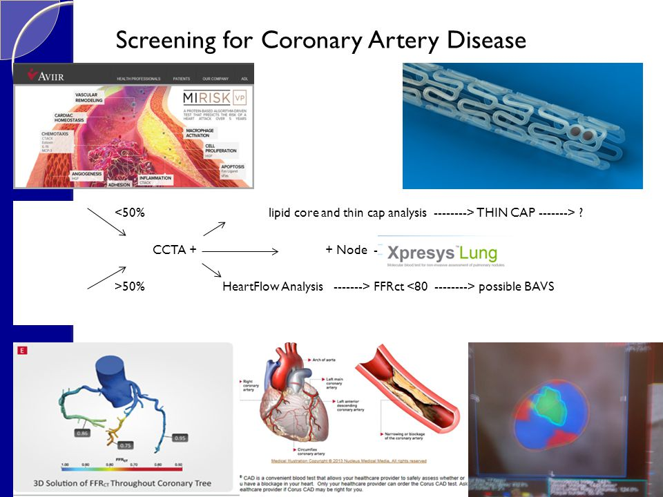 Screening for Coronary Artery Disease THIN CAP -------> .