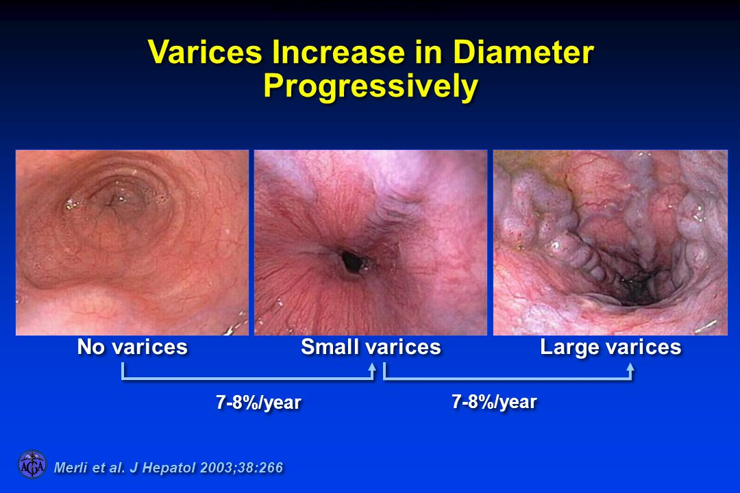 Small varices Large varices No varices 7-8%/year Varices Increase in Diameter Progressively Merli et al. J Hepatol 2003;38:266 VARICES INCREASE IN DIA