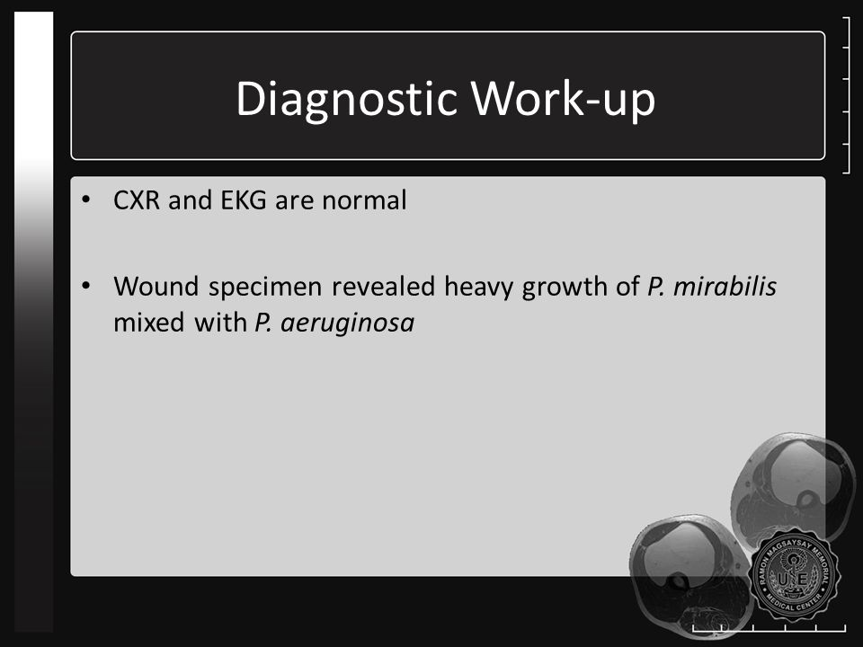 Diagnostic Work-up CXR and EKG are normal Wound specimen revealed heavy growth of P.