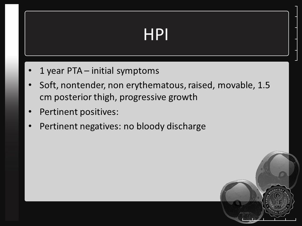 HPI 1 year PTA – initial symptoms Soft, nontender, non erythematous, raised, movable, 1.5 cm posterior thigh, progressive growth Pertinent positives: Pertinent negatives: no bloody discharge