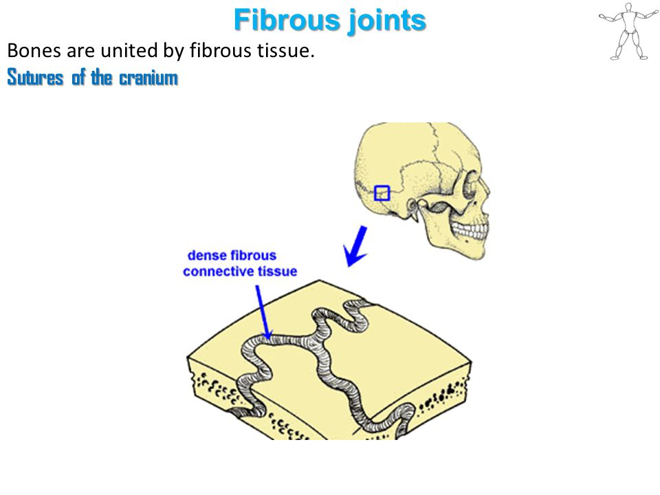 Fibrous joints Syndesmosis type of fibrous joint unites the bones with a sheet of fibrous tissue either a ligament or a fibrous membrane partially movable The interosseous membrane in the forearm is a sheet of fibrous tissue that joins the radius and ulna in a syndesmosis.