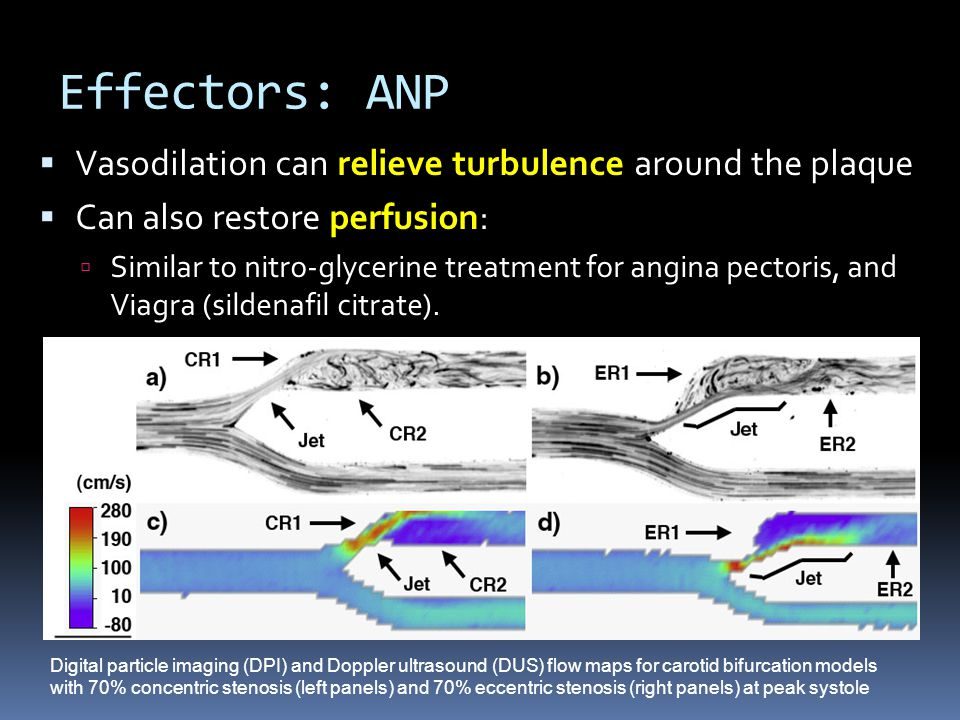 Effectors: ANP  Vasodilation can relieve turbulence around the plaque  Can also restore perfusion:  Similar to nitro-glycerine treatment for angina