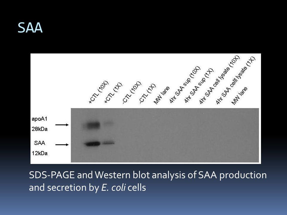 SDS-PAGE and Western blot analysis of SAA production and secretion by E. coli cells SAA