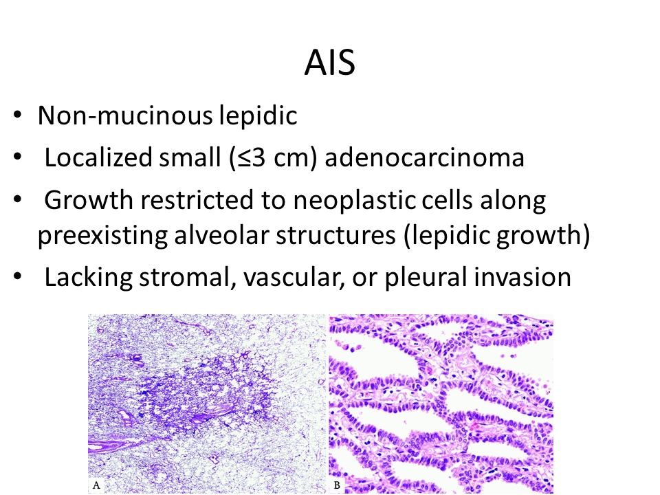 AIS Non-mucinous lepidic Localized small (≤3 cm) adenocarcinoma Growth restricted to neoplastic cells along preexisting alveolar structures (lepidic growth) Lacking stromal, vascular, or pleural invasion