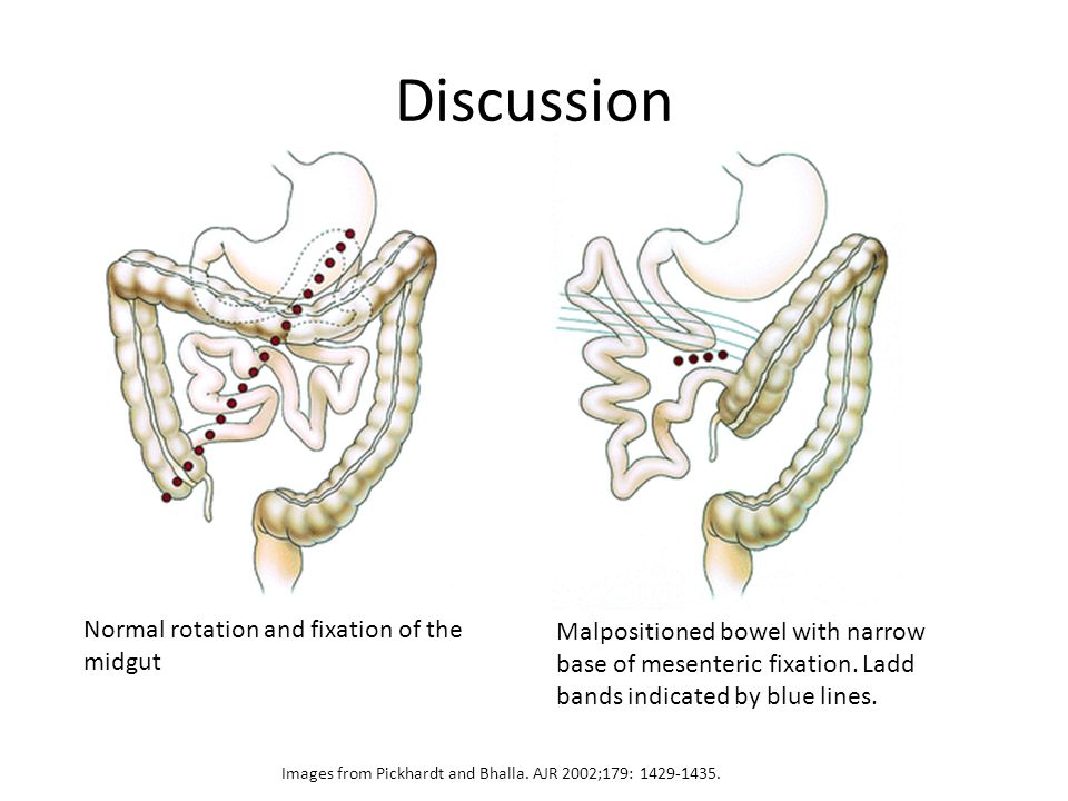 Discussion Normal rotation and fixation of the midgut Malpositioned bowel with narrow base of mesenteric fixation.