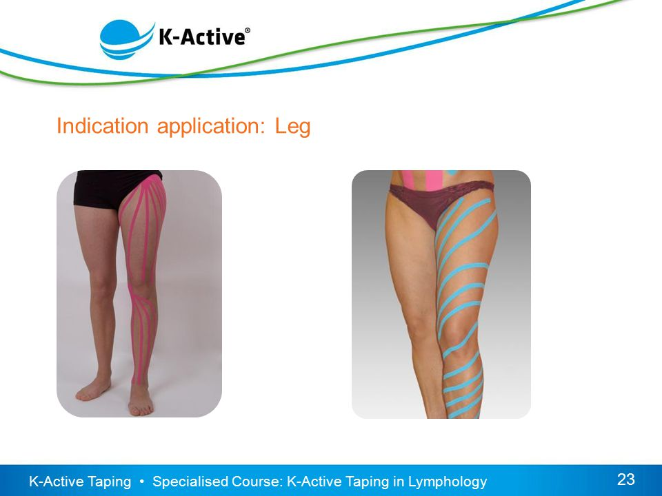 K-Active Taping Specialised Course: K-Active Taping in Lymphology 23 Indication application: Leg