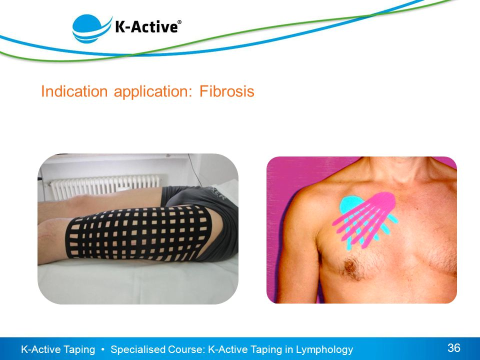 K-Active Taping Specialised Course: K-Active Taping in Lymphology 36 Indication application: Fibrosis
