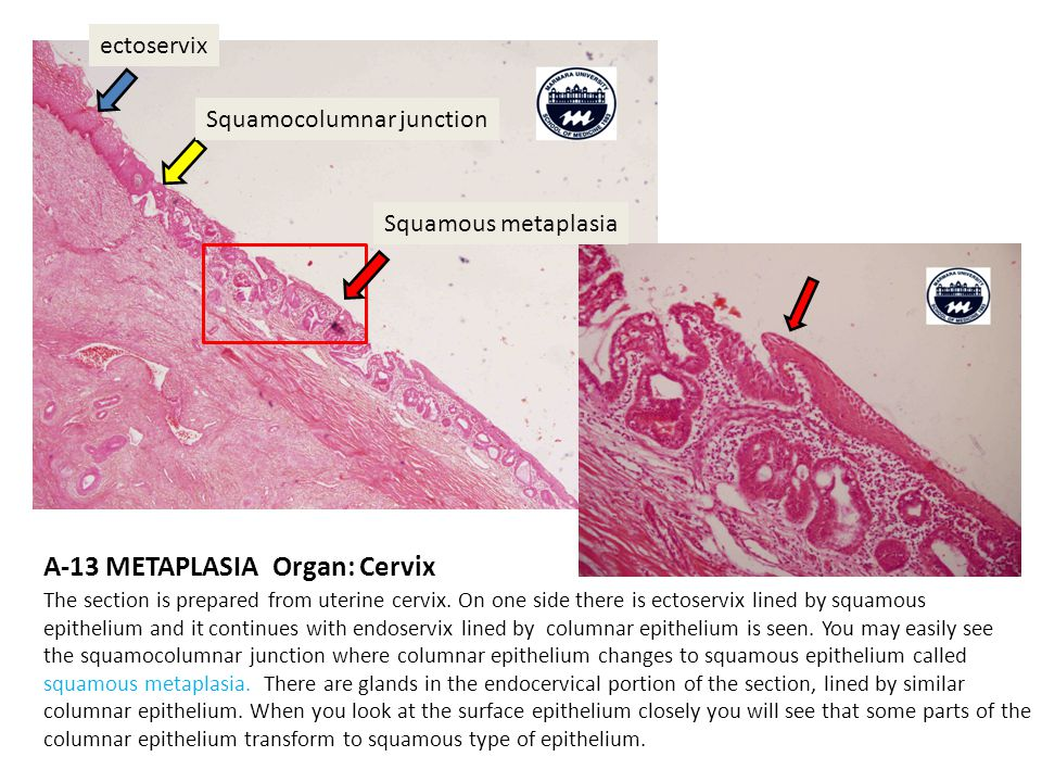 A-13 METAPLASIA Organ: Cervix The section is prepared from uterine cervix.