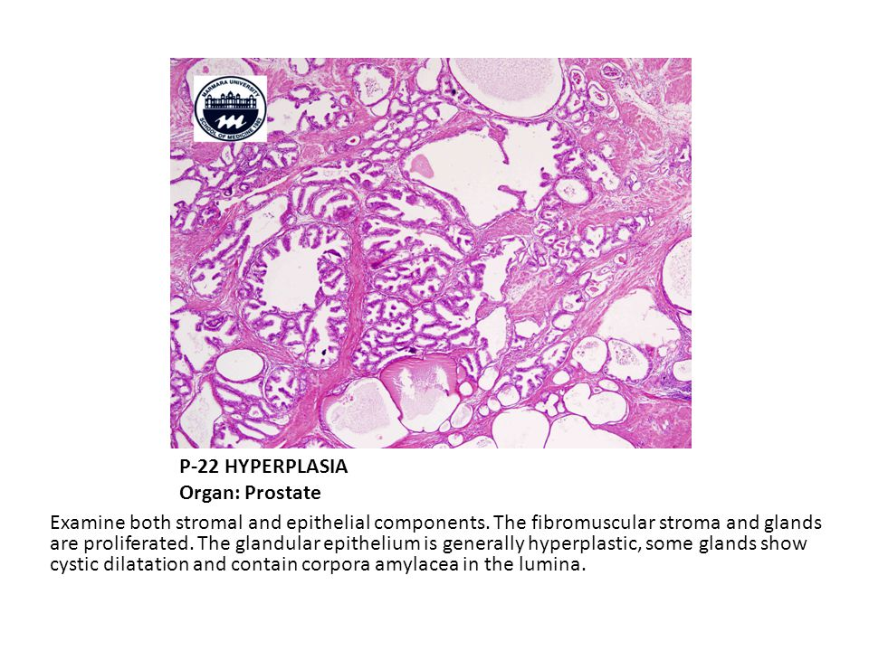 P-22 HYPERPLASIA Organ: Prostate Examine both stromal and epithelial components.