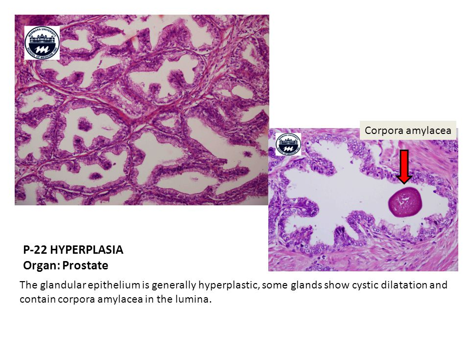 P-22 HYPERPLASIA Organ: Prostate The glandular epithelium is generally hyperplastic, some glands show cystic dilatation and contain corpora amylacea in the lumina.