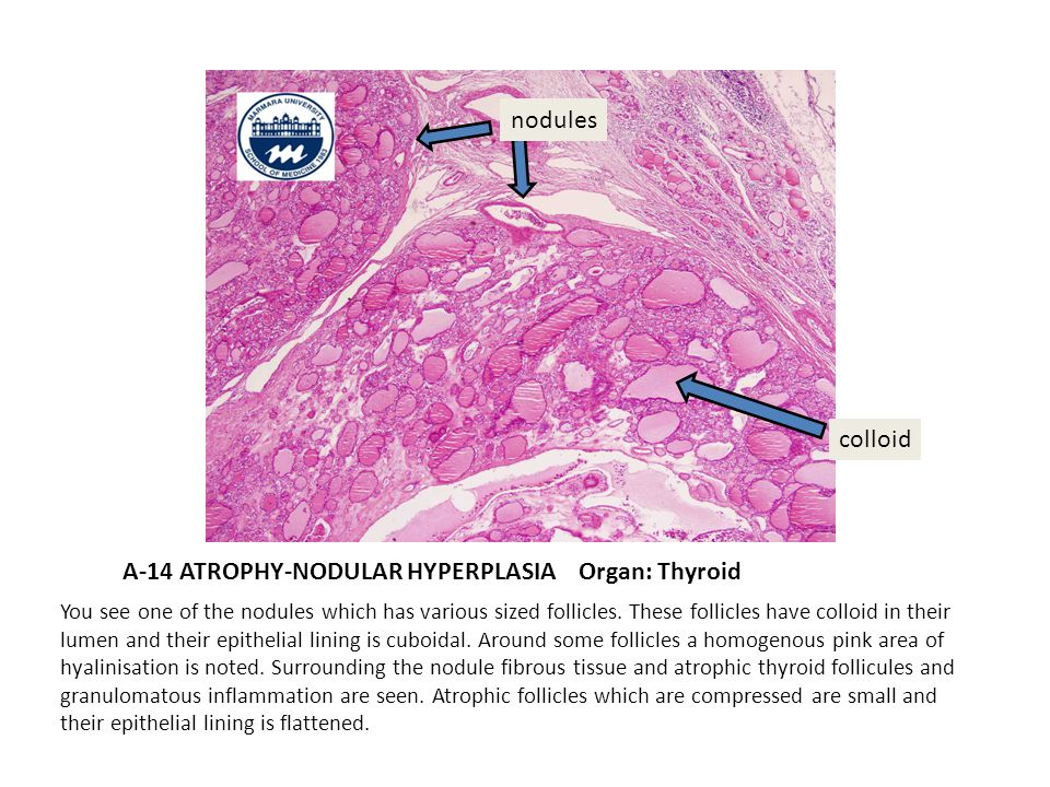 A-14 ATROPHY-NODULAR HYPERPLASIA Organ: Thyroid You see one of the nodules which has various sized follicles.