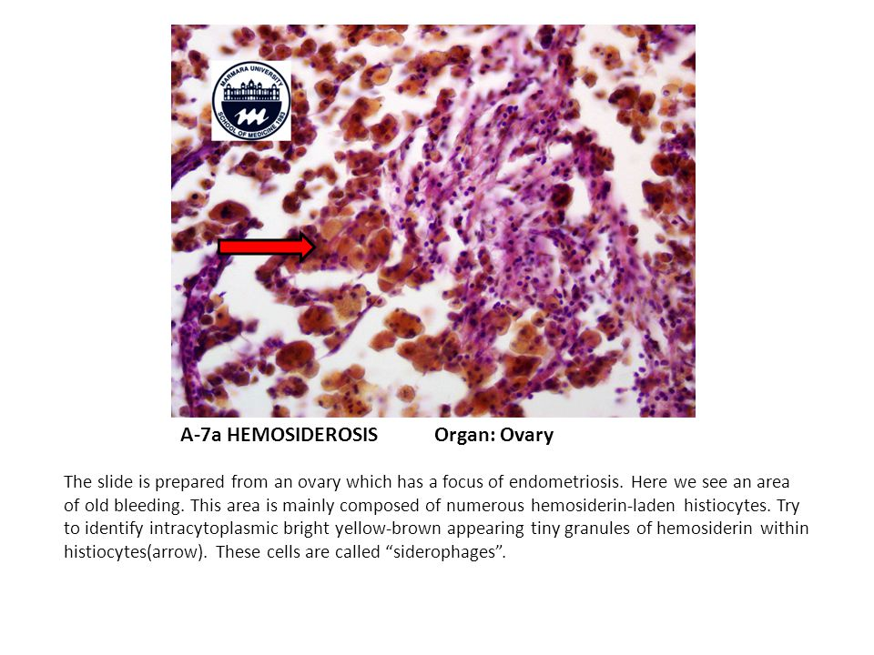 A-7a HEMOSIDEROSIS Organ: Ovary The slide is prepared from an ovary which has a focus of endometriosis.