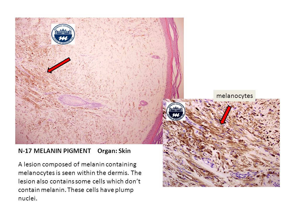 N-17 MELANIN PIGMENT Organ: Skin A lesion composed of melanin containing melanocytes is seen within the dermis.