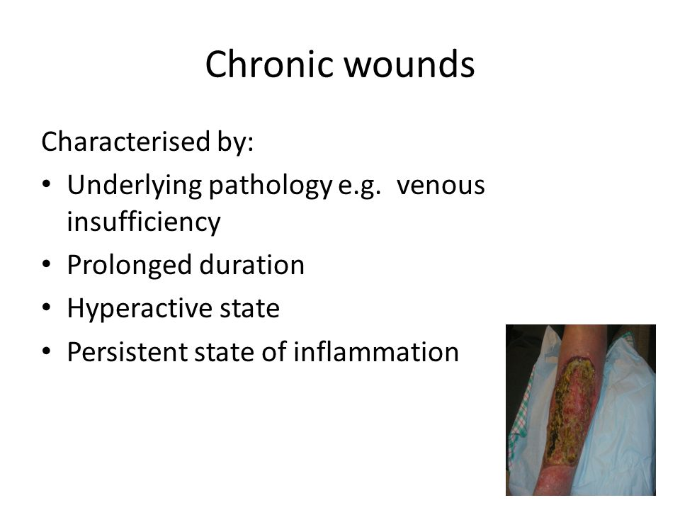 22 Chronic wounds Characterised by: Underlying pathology e.g. venous insufficiency Prolonged duration Hyperactive state Persistent state of inflammati